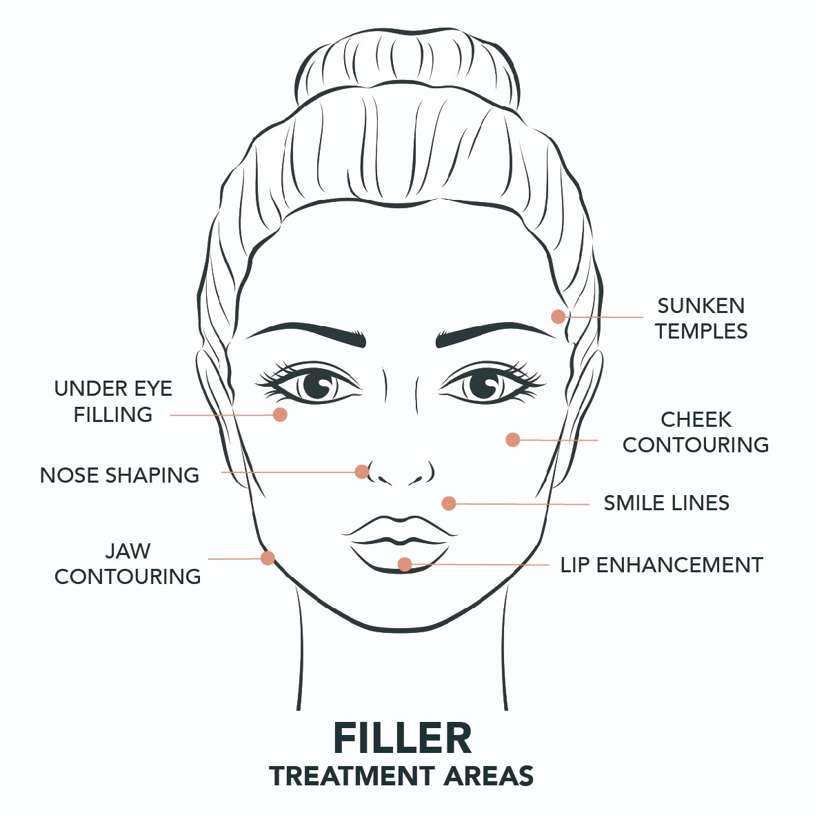 Lip Fillers-treatment